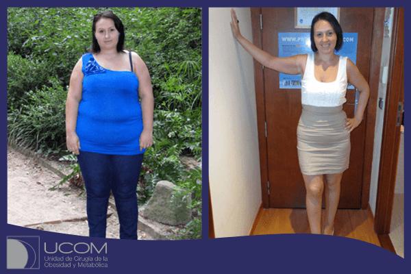 Antes y después de la reducción de estómago de Lucia