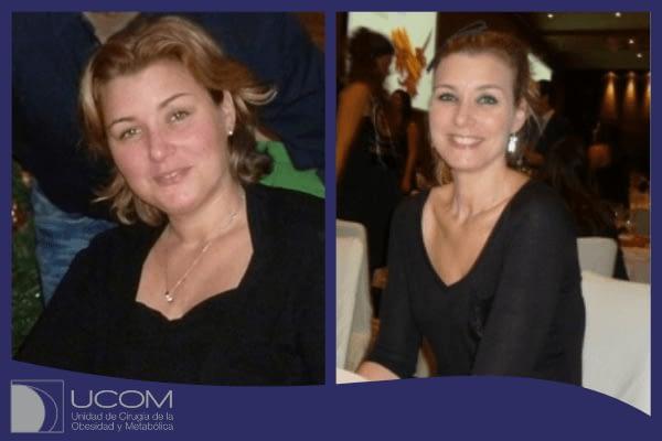 Antes y después de la reducción de estomago de Mireia