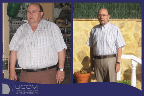 Antes y después de la reducción de estómago de L.A. Ramos