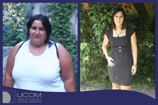 Sara antes y después de su Bypass Gástrico