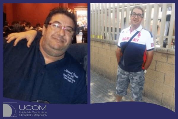 J Tafalla antes y despues de su gastrectomía vertical