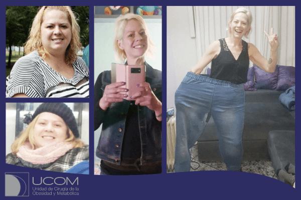 Antes y después de la reducción de estómago de Rosa G