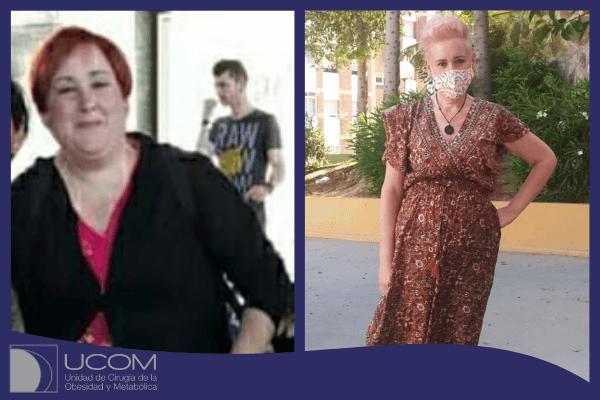 Antes y después del bypass gástrico de Yolanda
