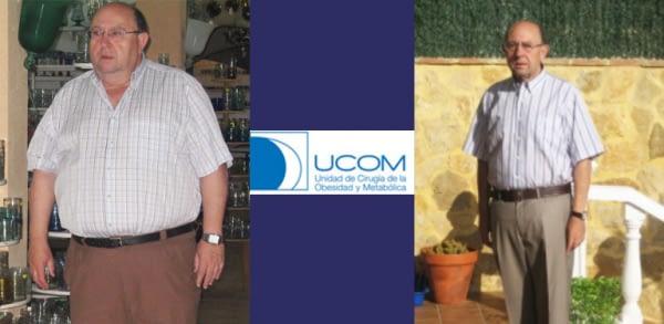 Reducción de estómago de Leon Amadeo Ramos