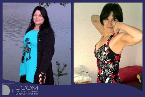 Vanesa CP antes y después de su reducción de estomago