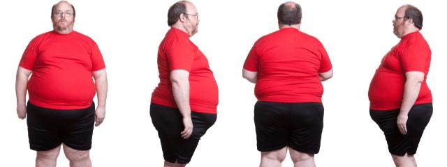 4 puntos de vista de un cuerpo con obesidad
