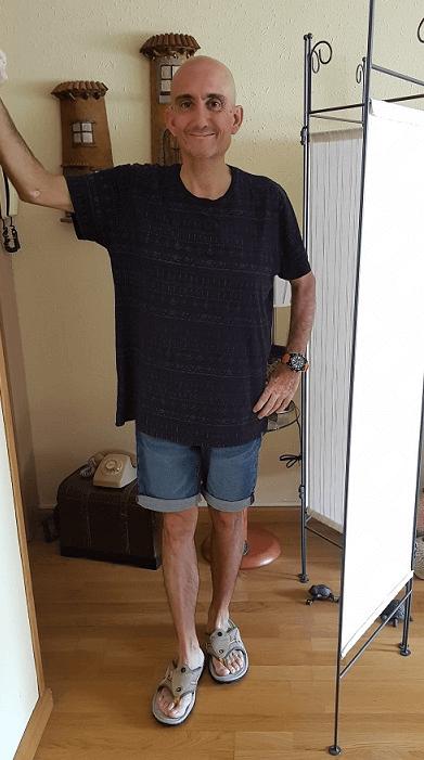 David F después de someterse a un Gastrectomía Vertical