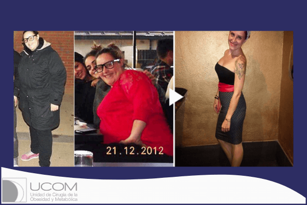 Virginia antes y después de su reducción de estómago